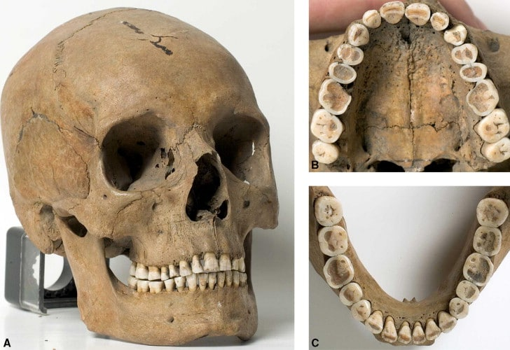 From Are malocclusions more prevalent and severe now? A comparative study of medieval skulls from Norway