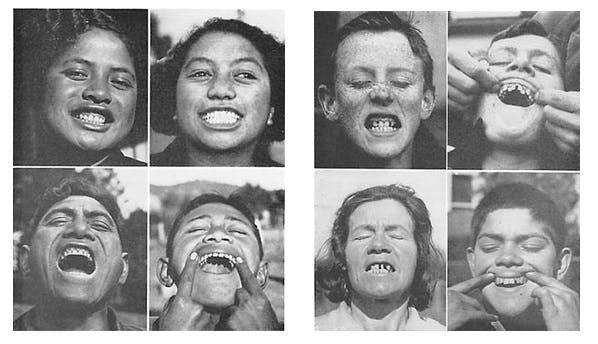 Weston Price, Crooked Teeth, and Genetics